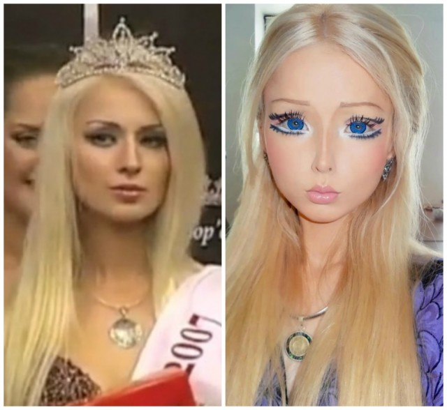 Valeria Lukynova before and after barbie