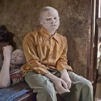 Desa Ini Seluruh Penduduknya Menderita Albino...Nasibnya Mengenaskan