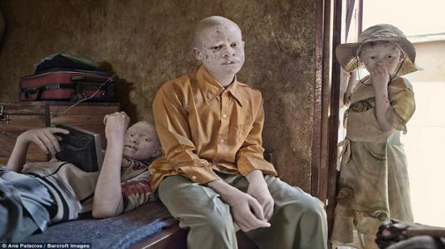 desa-albino-tanzania
